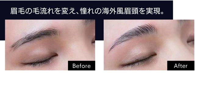 眉毛の毛流れを変え、憧れの海外風眉頭を実現。